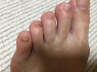 足の爪 変形 変色