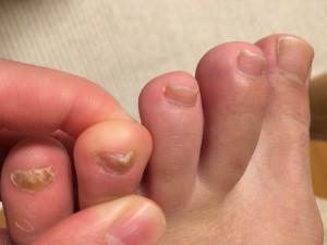 足の爪 変形 薬指